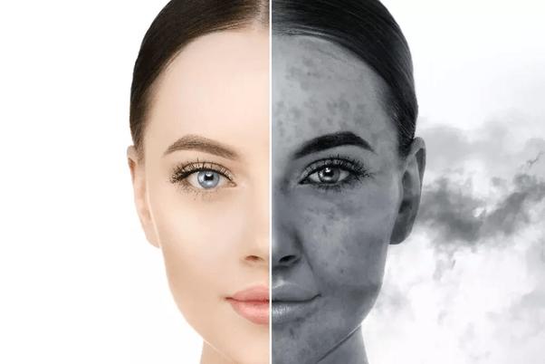 homemade-face-packs-for-acne