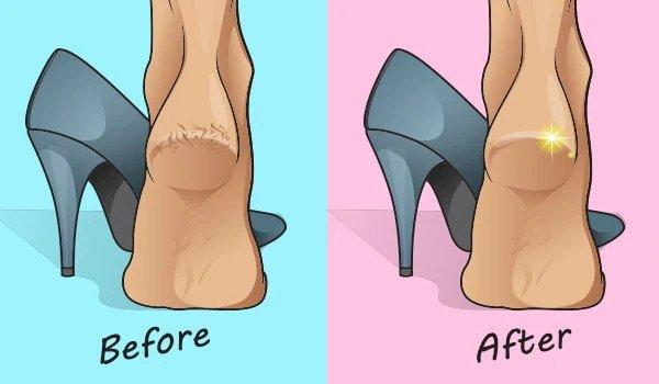 banana to fix crack heels
