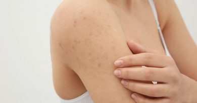 How to Get Rid Of Pimples After Waxing Arms