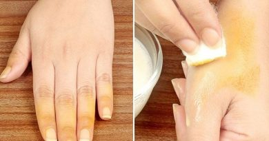 How To Remove Turmeric Stains From Skin