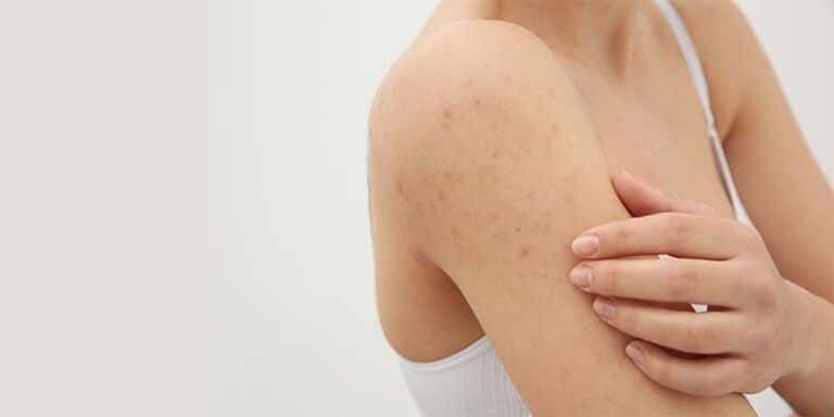 acne on shoulders